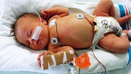 Meningokokinė infekcija pavojinga ir vaikams, ir suaugusiesiems