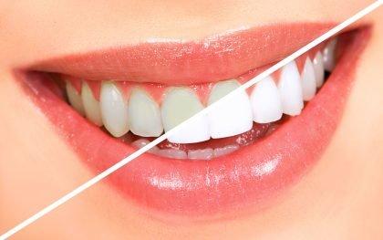 Dantų balinimas: tiesa ir mitai