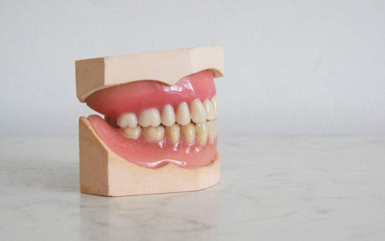 Žaizdelės burnoje - opinis nekrozinis gingivitas priežastys ir gydimas