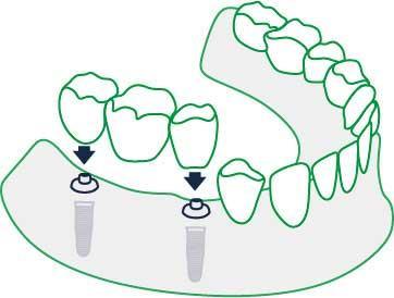Šiuolaikiniai dantų implantai skubantiems žmonėms