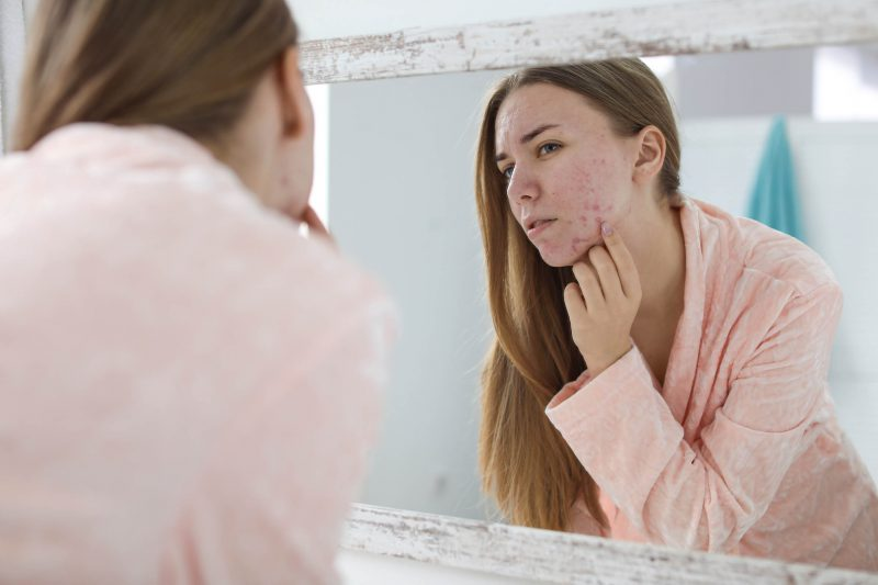 5 aknės varginamos odos priežiūros klaidos