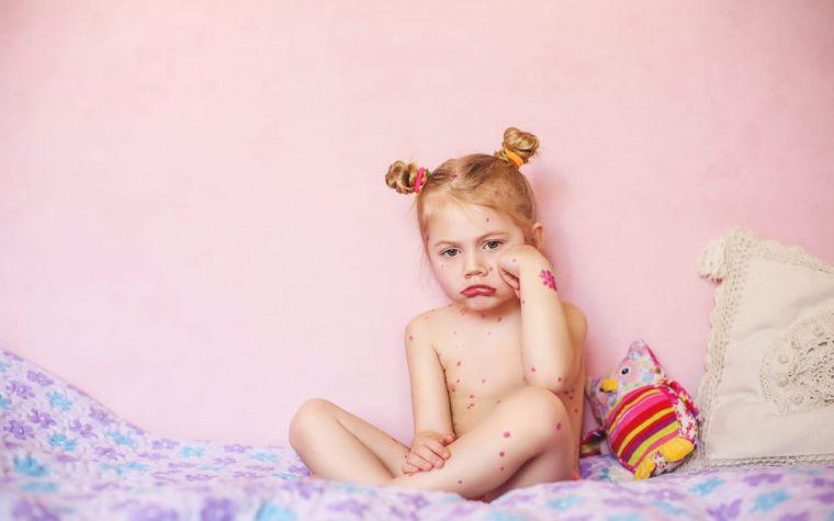 Mergaitė serganti vėjaraupiai sėdi nuliūdusi ant lovos išberta spuogeliais.