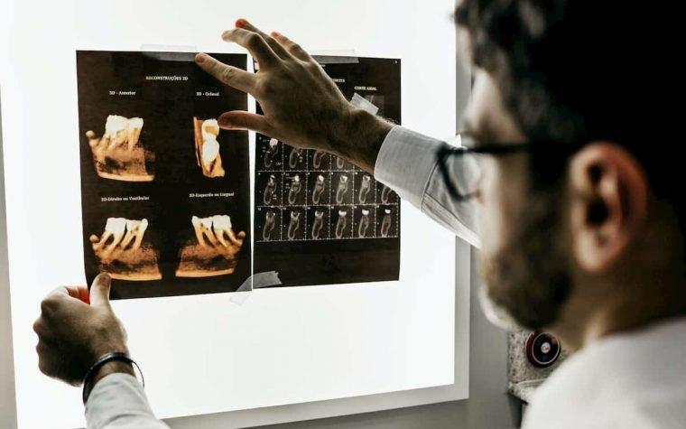 Dantų implantai, jų rūšys ir ypatybės