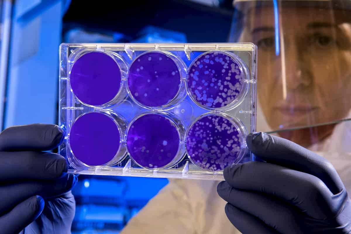 Specifinės žarnyno bakterijos galimai pasižymi antiradiaciniu poveikiu