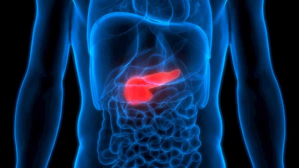 Pankreatitas: viskas, ką reikia žinoti apie kasos uždegimą