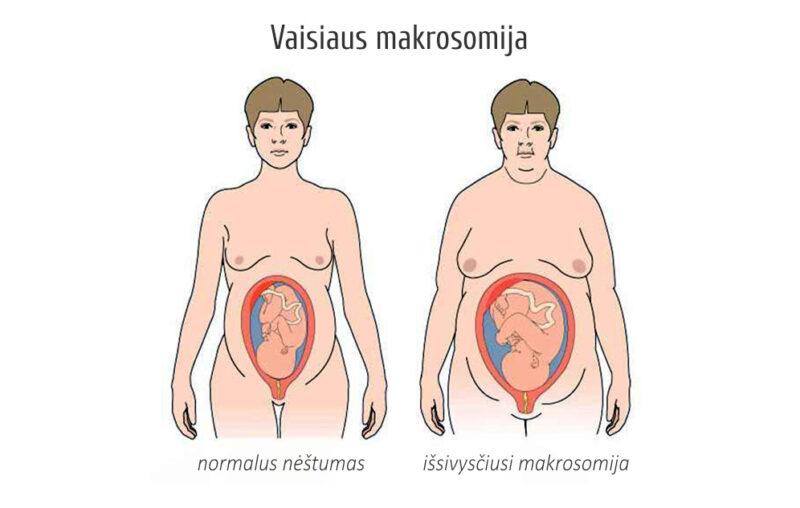 Vaisiaus makrosomija